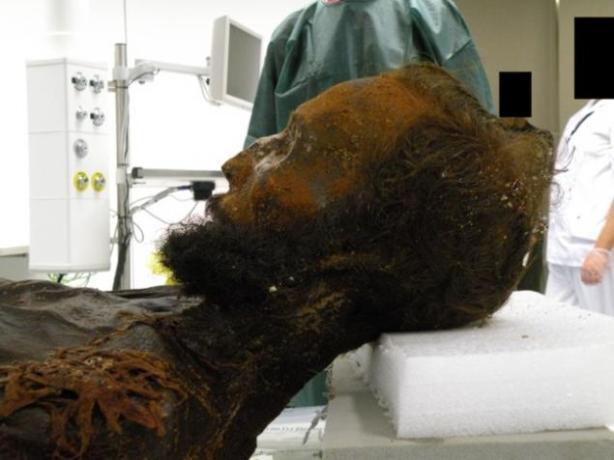 autopsia-de-la-cabeza-del-general-prim-fotografia-de-ioannis-koutsourais-23685